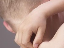 Amoxicillin Side Effects Rash in Infants